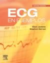 ECG En Ejemplos