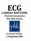 ECG Cardiac Rhythm