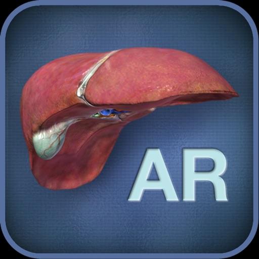 【3D成像】肝脏展示