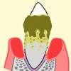 歯垢・歯石と歯周病の説明