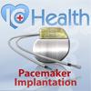 ArchieMD IC Health: Cardiac Pacemaker