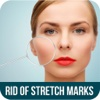 How To Get Rid Of Stretch Marks - Get Rid of Stretch Marks after Pregnancy