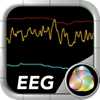 EEG Display For NeuroSky MindWave Mobile: A Quantified Self Research Tool