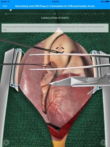 Touch Surgery screenshot 1